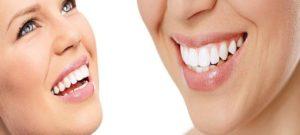 ¿Por qué contratar un seguro dental?