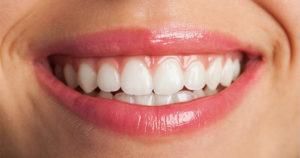 Blanqueamiento dental con seguro